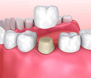The process of obtaining a dental crown - Pasadena, CA