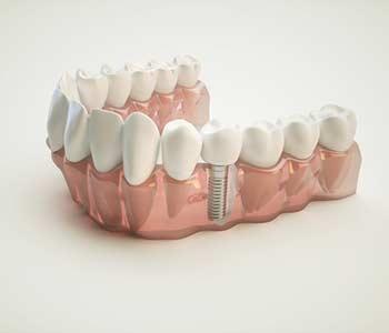 3D illustration of a Dental Implant