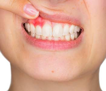 Pasadena Dentist Explains Common Causes of Gum Disease in Pasadena, CA area
