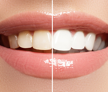 Healthy Teeth Whitening in Pasadena CA area