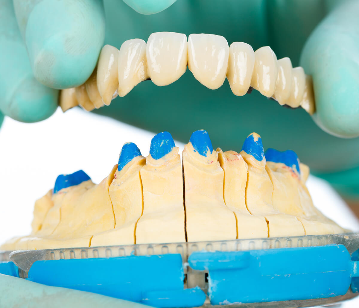 Crafting Beautiful Smiles with Ceramic Dental Bridges in Pasadena Area